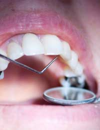 Dentist Fillings Longevity Repairs