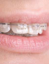 Gap Front Teeth Orthodontic Treatment
