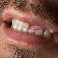 Tooth Loss Social Effects Family Friends