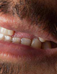 Tooth Loss Dentist Oral Health Lose Gap